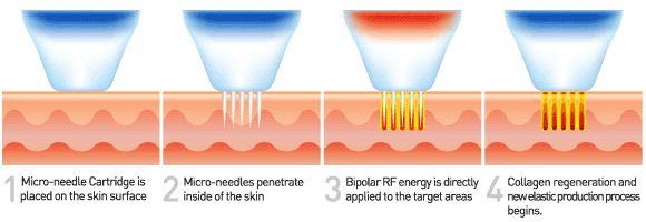 Microneedling RF VS Fractional Laser