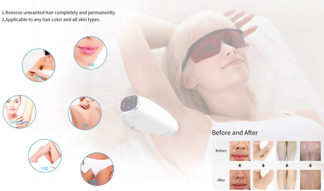 Upgraded diode laser hair removal machine