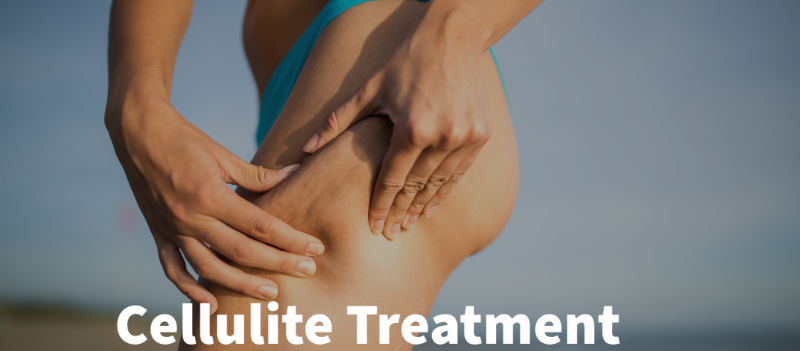RF Cellulite Treatments