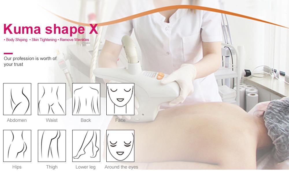 KUMA Body Shape X weight loss slimming vacuum roller massage device