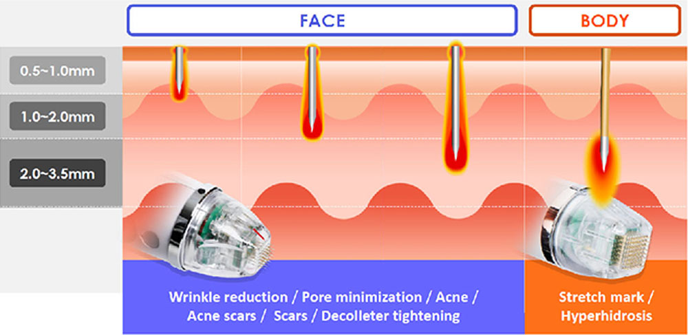 Micro-Needle Fractional RF Machine