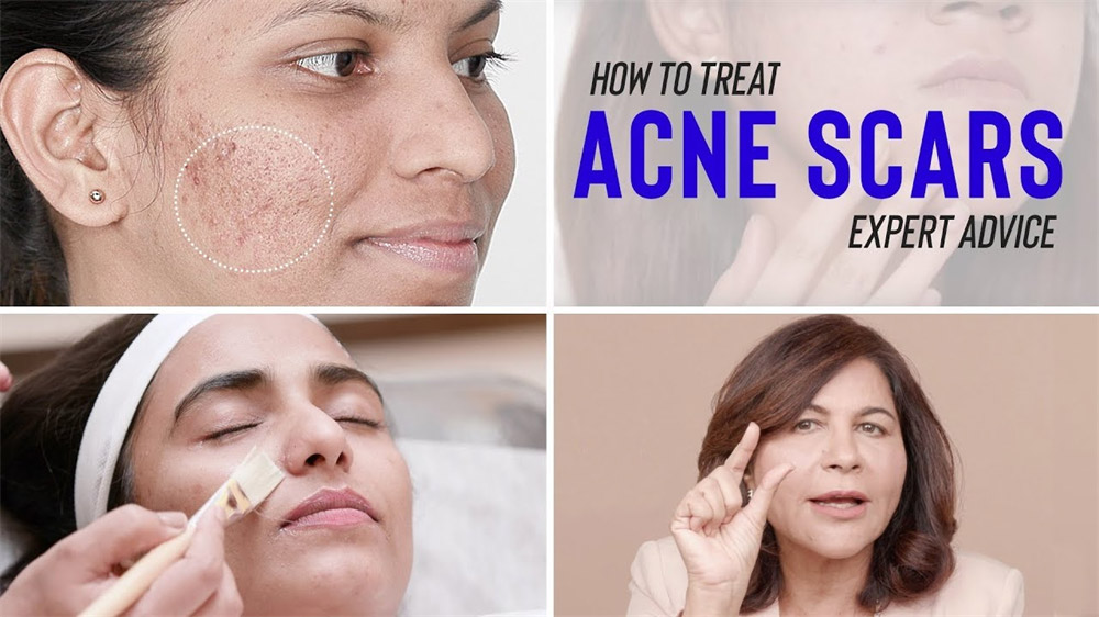 Having acne often gets in the way during the big days of your life