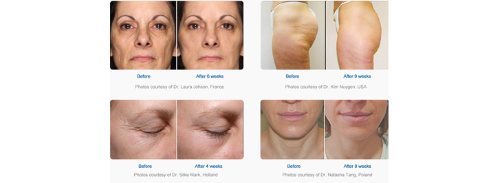 Before And After Ultrasonic Cavitation Treatment