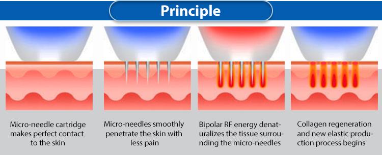 Vertical microneedle RF