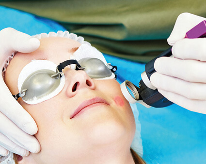 Fractional co2 laser skin resurfacing