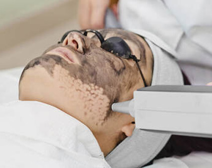 Hollywood facial with ND YAG laser