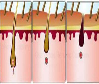 Advantages of Laser Diode Hair Removal