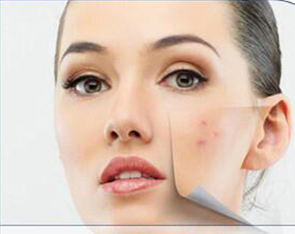 Acne Treatment recommendations