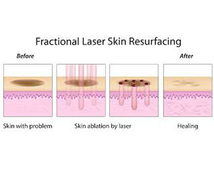 Fractional Laser Minimally Invasive Treatment of Scar