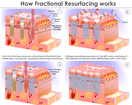 How Long Can Operation Begin Fractional Laser Treatment?