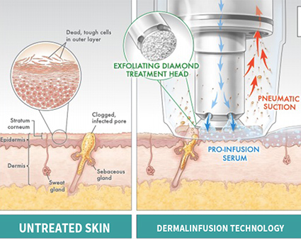 The Principle and Characteristics of Oxygen Revive Skin